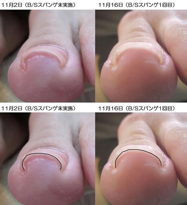巻き爪ケアモニター比較画像