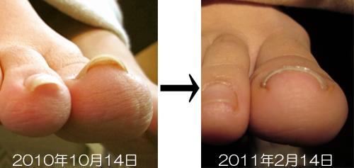 巻き爪の変化