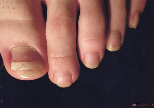 巻き爪だいぶよくなってきました。